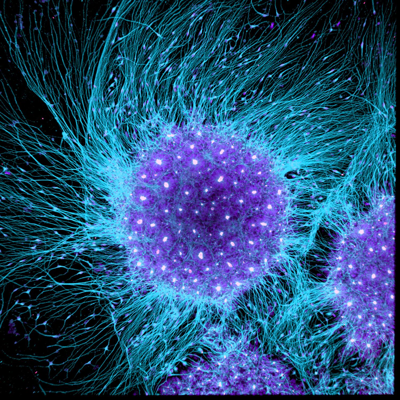 Human neural rosette primordial brain cells, differentiated from embryonic stem cells (Dr. Gist F. Croft, Lauren Pietilla, Stephanie Tse, Dr. Szilvia Galgoczi, Maria Fenner, Dr. Ali H. Brivanlou)
