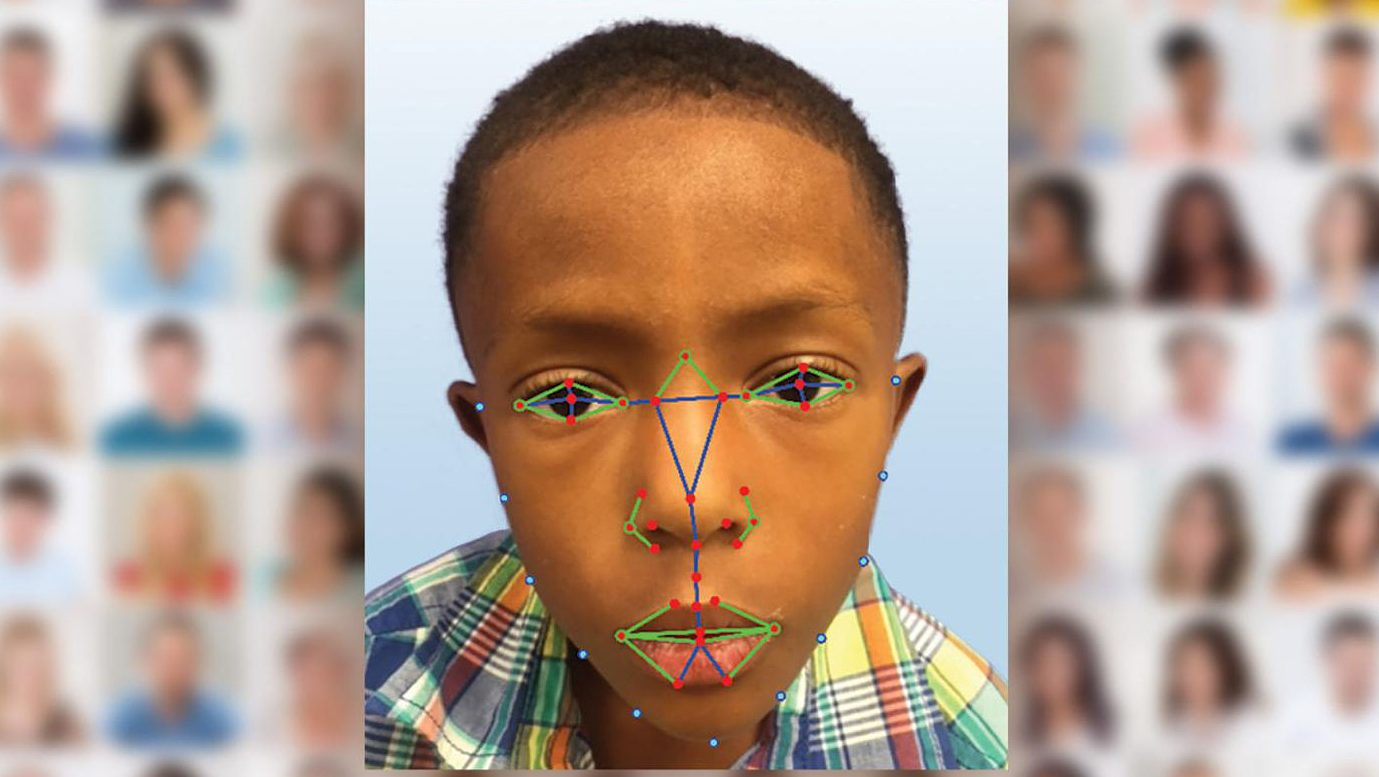 New Facial Recognition Software Helps Diagnose Rare Genetic Disease
