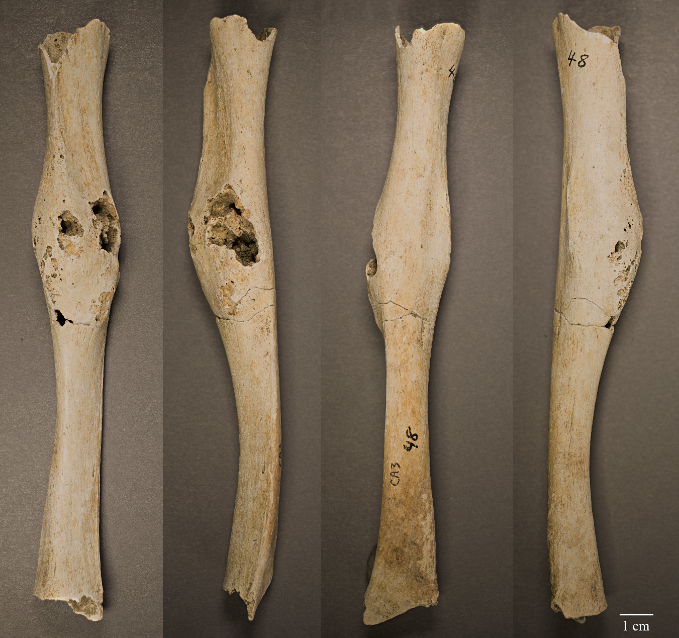Is This the Oldest-Known Cancer Case in Central America?