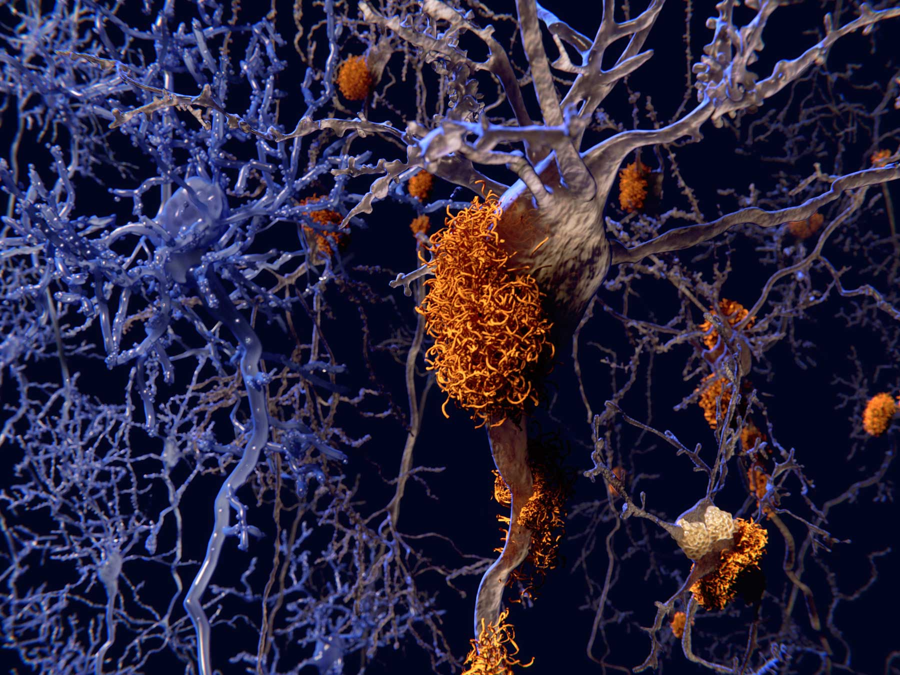 This New Alzheimer's Drug Could Repair Brain Damage